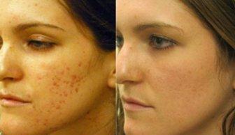 Resultat med CosmetiPen