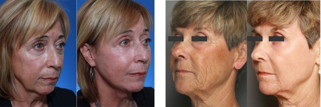 Resultat af CosmetiPen