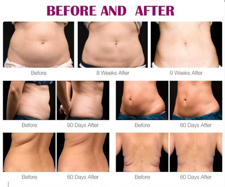 Før og efter billeder efter fedtfrysning