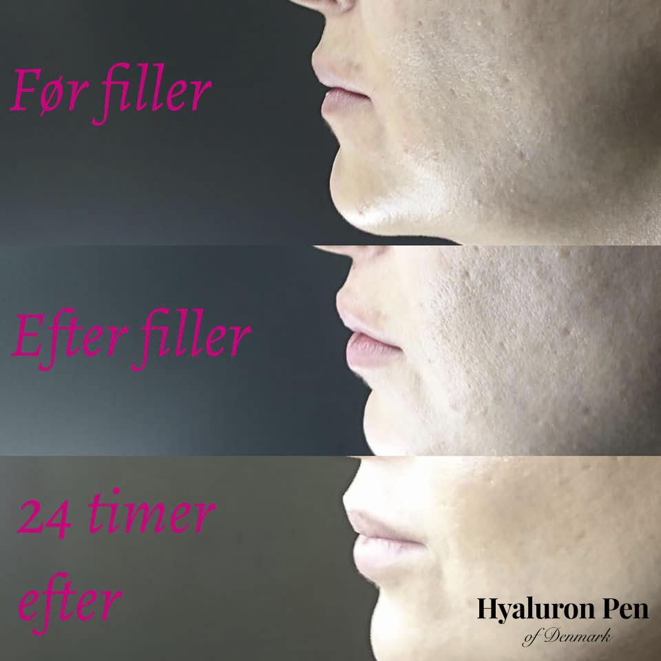 Fillers i læber med Hyaluron Pen