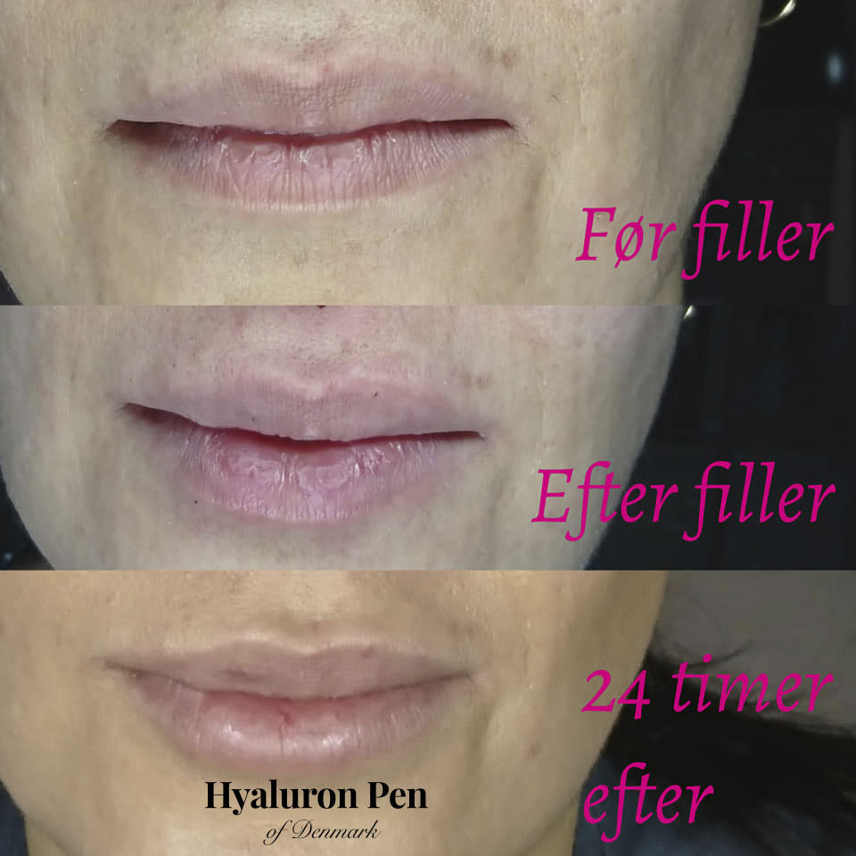 Hyaluron Pen behandling