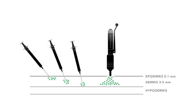 Hyaluron Pen versus kanyle